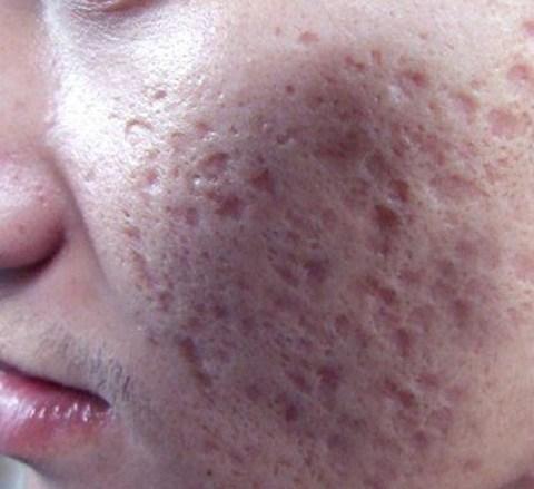 男士油性皮肤怎样去痘痘?消弭末路人痘痘君绝招大公开
