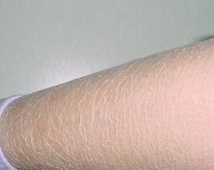 鱼鳞皮肤_对此,上海皮肤病医院医生为大家指出了以下几点:   一,季节变化:鱼鳞