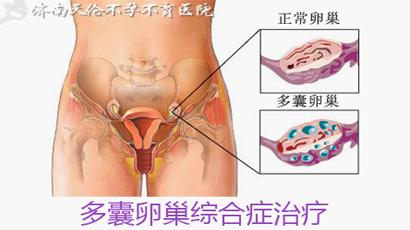 肥胖女性多囊卵巢的症状