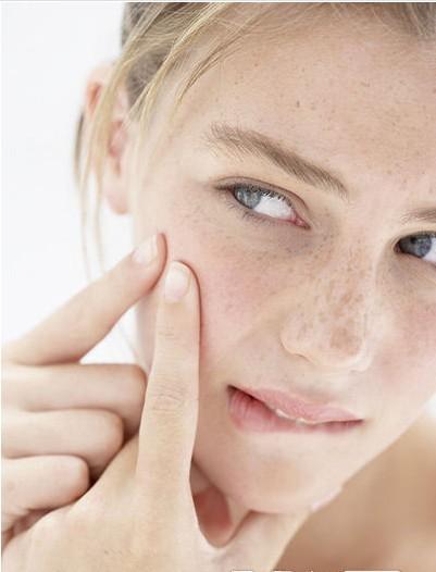 黑痘印一般多久会消失-合肥哪里治疗脸上痘痘好呢 脸上的痘痘好烦人