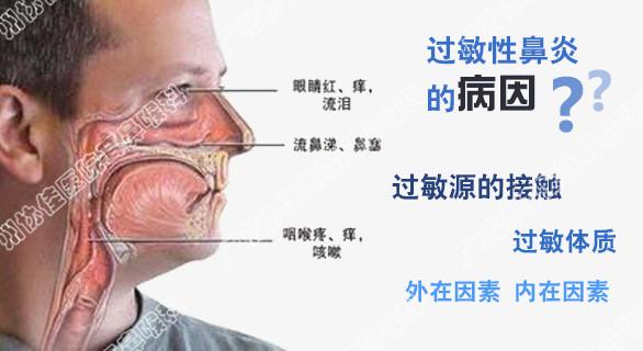 广州协佳耳鼻喉医院专业治疗过敏性鼻炎采取HIFU飞波技术 广州医科大学附属第二医院耳鼻喉科和广州协佳耳鼻喉医院哪家好?广州协佳医院耳鼻喉科介绍:HIFU飞波技术,即高强度聚焦超声技术是一种非侵入性治疗方法。用HIFU飞波技术治疗过敏性鼻炎,已经基本脱离了传统的有创和微创手术概念。它在治疗时不仅 、无切口、 ,而且不破坏鼻腔黏膜上皮的结构,对鼻腔黏膜黏液纤毛系统的功能没有损害,是一种专门治疗常年性过敏性鼻炎和季节性过敏性鼻炎的很新治疗技术。 HIFU飞波技术治疗过敏性鼻炎的几大优点:
