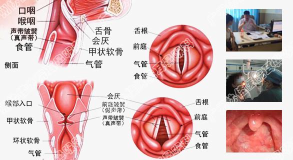 它能保留咽喉部的正常生理功能