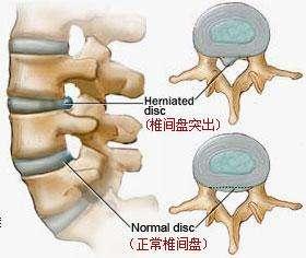 腰椎间盘突出了怎么办,如何有效治疗