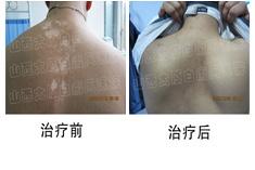 太原白癜风医院-青少年背部康复案例