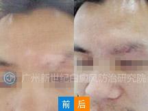 广州新世纪白癜风医院 -王小朋友 9岁 左脸白斑2年余