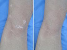 长沙中研白癜风医院-儿童腿部散发型白癜风康复案例