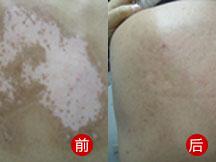 郑州西京白癜风医院-为父亲寻找白癜风治疗过程