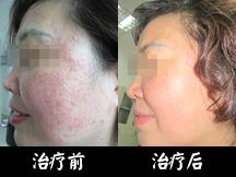 重庆华肤皮肤病医院-激素依赖性皮炎 2个疗程康复