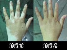 重庆华肤皮肤病医院-消除四肢白斑 重获生活自信