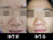 重庆华肤皮肤病医院-女白领战痘成功 重拾自信