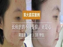 合肥军大医院皮肤科-长痘虐的不只是脸,更是心