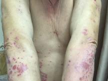 北京燕都医院牛皮癣-牛皮癣的发病原因有哪些