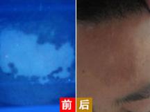 """福州中科白癜风研究所-抓住早期治疗,7岁患儿轻松""""战胜""""白癜风"""