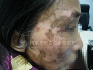 南京华厦白癜风研究所-【NO.5756病例】母亲的白癜风好了 我总算尽了份孝心