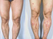 保定中大银屑病-烫伤导致牛皮癣,及时治疗是关键