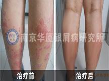 南京华厦银屑病研究所-一位银屑病患者的治病历程及心得