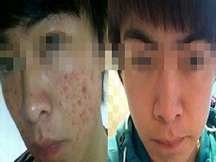 苏州肤康皮肤医院-青春痘导致严重的心里疾病