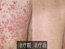 苏州肤康皮肤医院-治疗牛皮癣就在苏州肤康