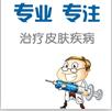 北京万国中医医院治疗牛皮癣我们应该注意哪些问题?