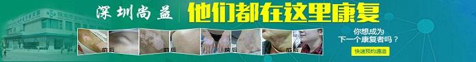 深圳益尚白癜风医院-深圳白癜风患者分享:白癜风日常护理?