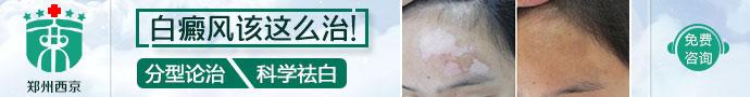 郑州西京白癜风医院-河南省冬季皮肤白斑公益大普查温暖启动