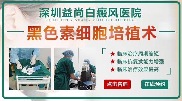 """深圳益尚白癜风医院-注意!这些白癜风""""雷区""""会影响康复"""