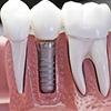种植一颗牙需要多少钱?